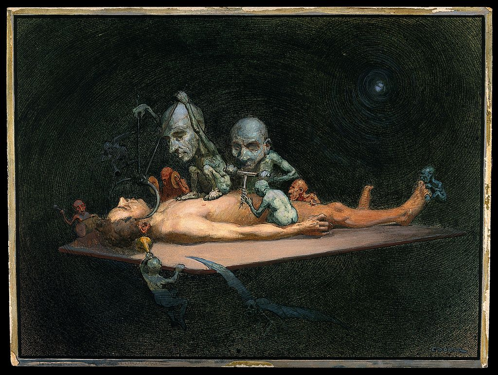 This image has an empty alt attribute; its file name is 1024px-An_unconscious_naked_man_Wellcome_V0017053.jpg